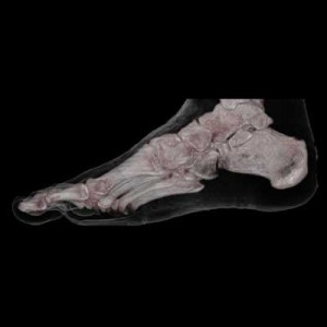 CT_3D_human_Foot_Skin_and_Bone